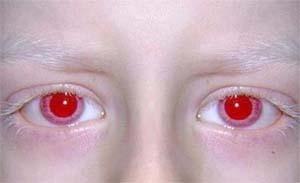 albinismo2
